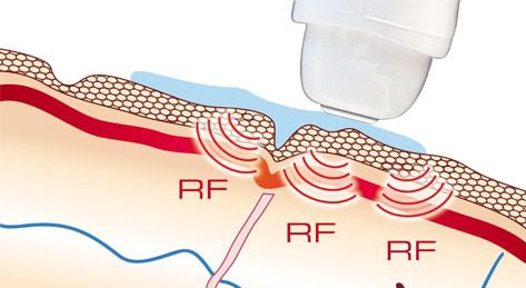 Ilift Radiofrequency - Effetti